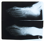 X-Ray photo of feet
